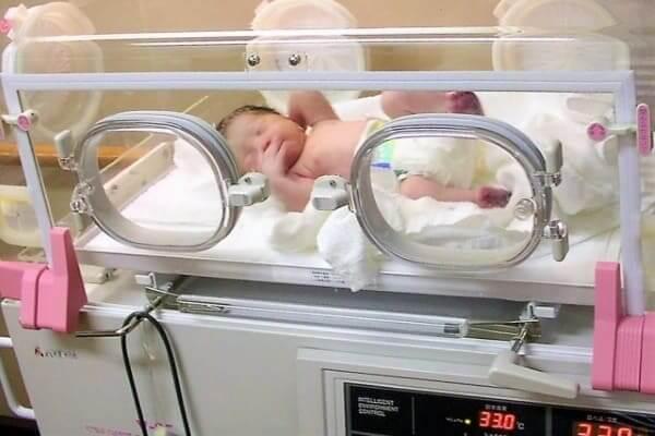帝王切開新生児クベース保育器