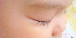 赤ちゃんの目やにについて